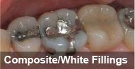 Composite/White fillings